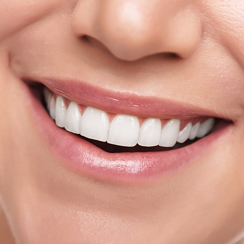 Closeup of smile after fluoride treatment